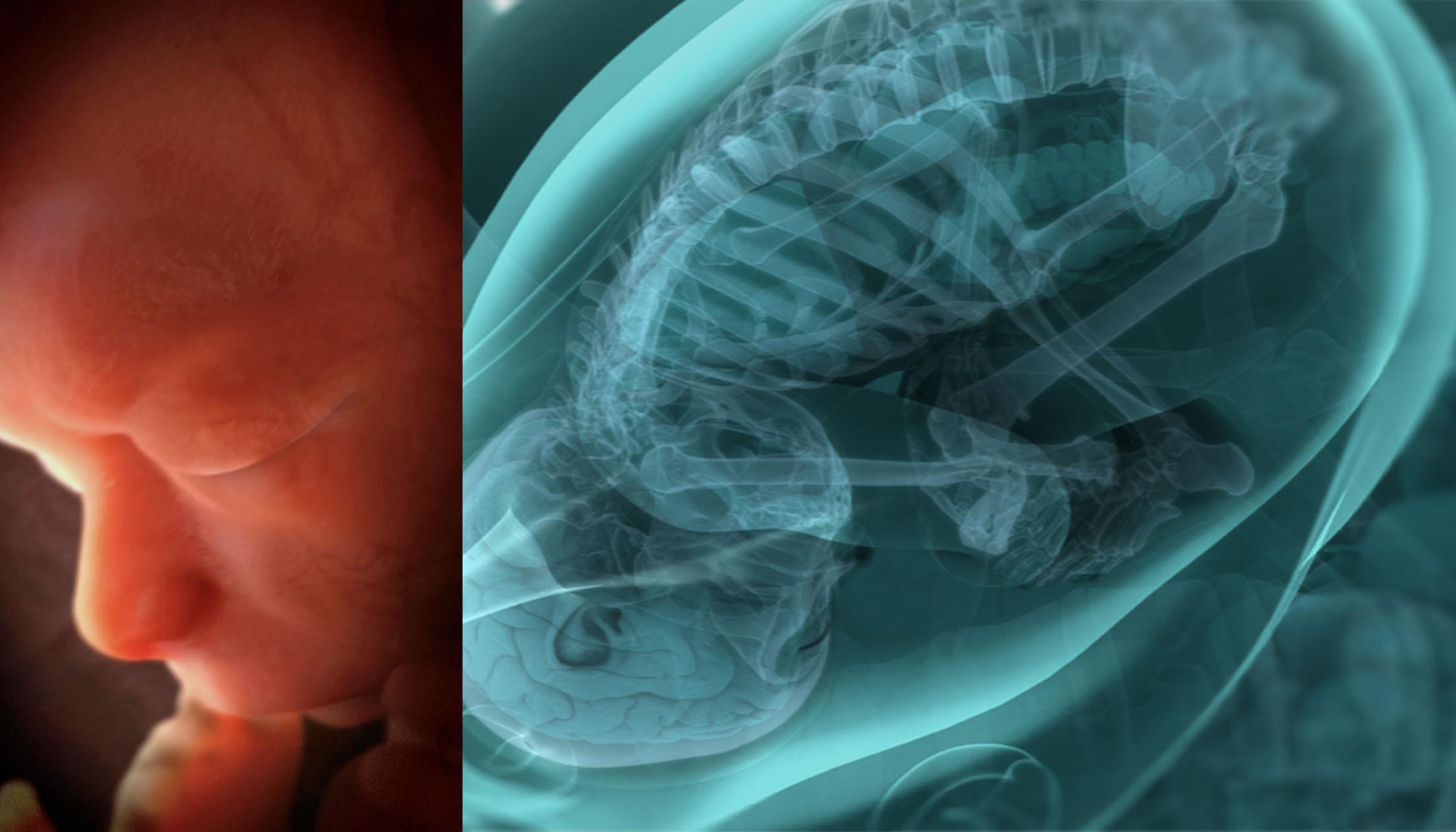 Odisea viaja al interior del cuerpo humano - AMC Networks